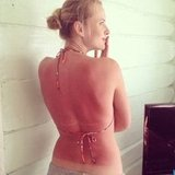 Anne V. showed off her sunburn. Source: Twitter user AnneV