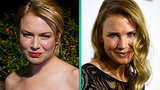 What Did Renee Zellweger Do to Her Face? Plastic Surgeon Weighs In