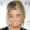 Can You Guess Which Celebrity Had Acne?  
