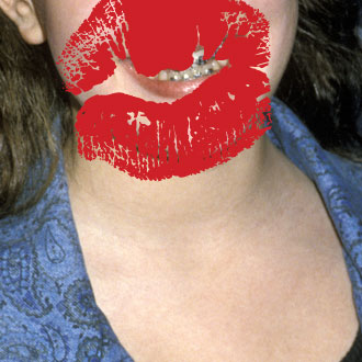 Can You Guess These Famous Brace Faces?
