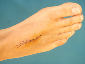 Speak Up: Have You Ever Had Stitches?