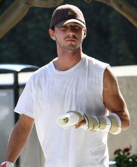 Photo of Shia LaBeouf, Whose Rep Recently Denied Reports His Pinky Is Being Amputated