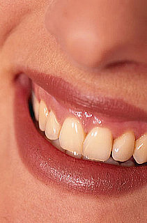 Professional Teeth Whitening: What You Should Know