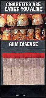 Briefing Book! NYC Hands Out Matchbooks With Rotting Gums