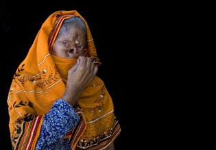 Burn Victims in Pakistan