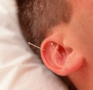 Acupuncture Relieves Tension Headaches