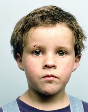 Six Tips For Identifying a Childhood Head Injury