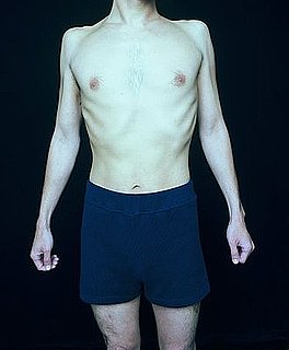 Men Who Struggle With Eating Disorders