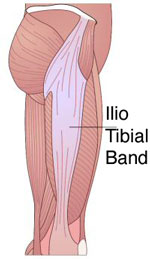 How to Prevent Iliotibial Band Syndrome When Running