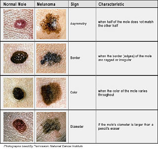 4 Warning Signs of Skin Cancer