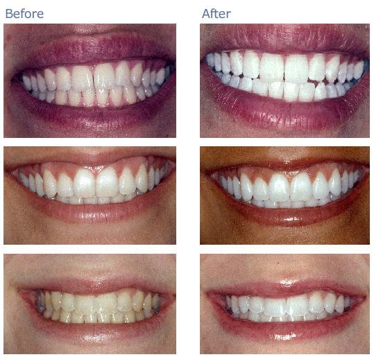 DEARSUGAR NEEDS YOUR HELP: Is Tooth Whitening For Me?